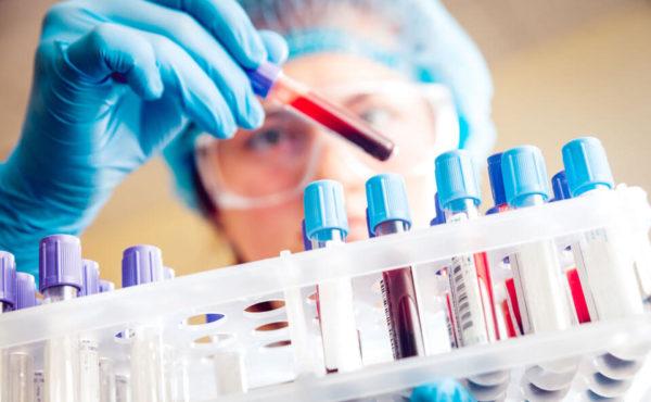 Лаборант изучает анализы крови