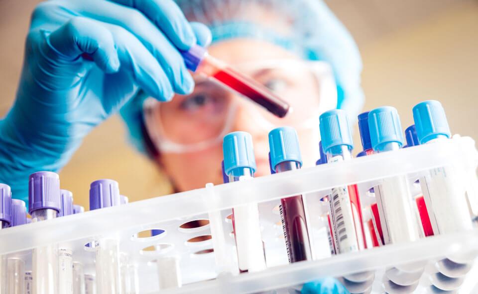 Анализ на наличие раковых клеток