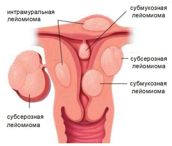 Разновидности лейомиом матки