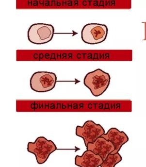 Стадии лейкоза