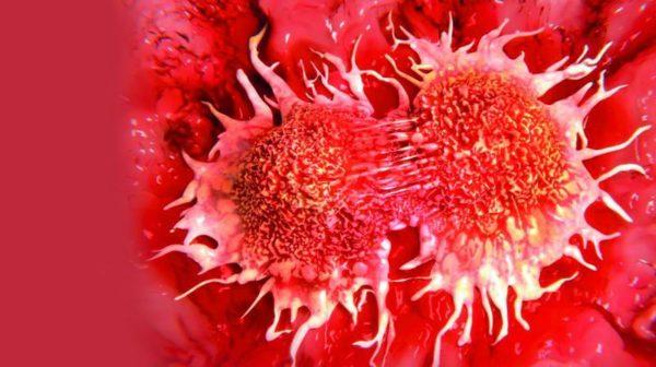Метастазы раковых клеток