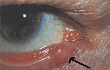 Аденокарцинома глаза