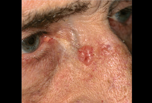 Базальная карцинома на носу