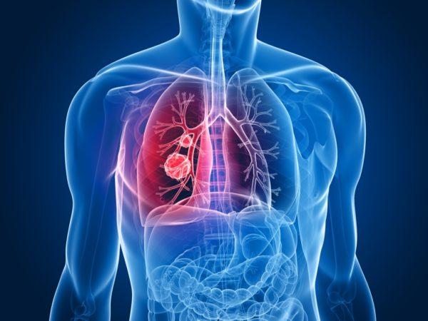 Мезотелиома в лёгких человека
