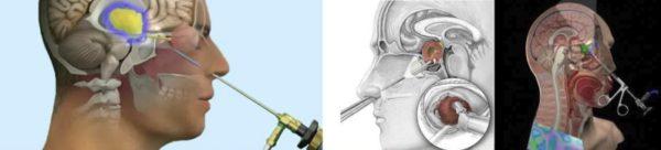 Эндоскопическая операция на мозге