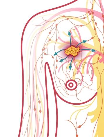 Профилактика онкологии молочной железы 1