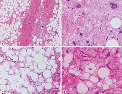 Клетки липосаркомы в тканях органов