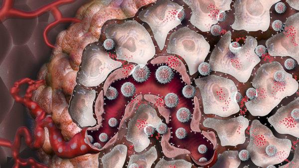 Кровь переносит раковые клетки