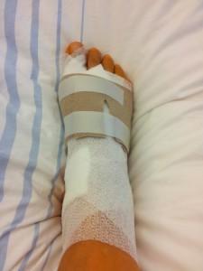 Операция на ноге