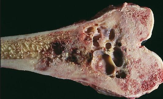 Фибросаркома в костной ткани