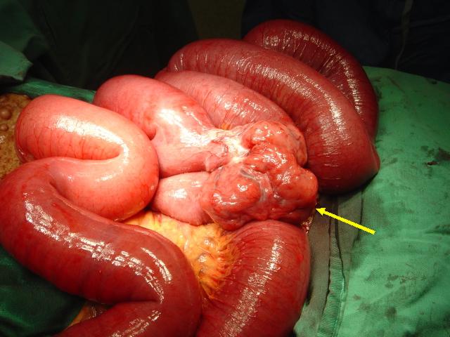 Стадии рака толстой кишки 1,2,3