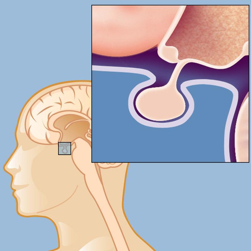 Опухоль гипофиза диагностика