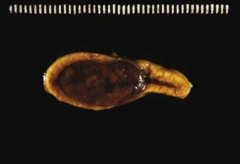 Феохромоцитома у человека