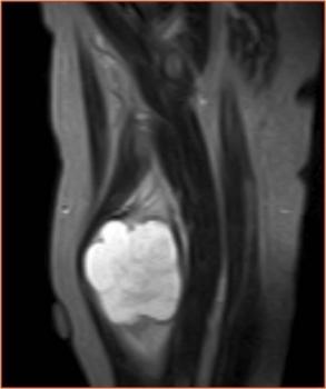 Мышечная миксома на рентгене