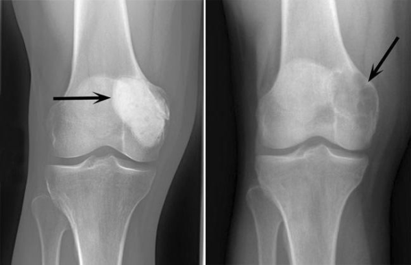 Остеобластокластома кости