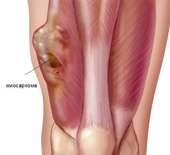 Миосаркома в скелетной мышце