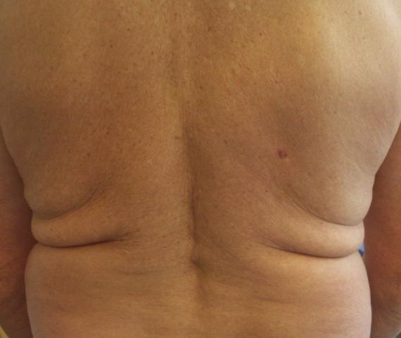 Дерматофибросаркома на спине