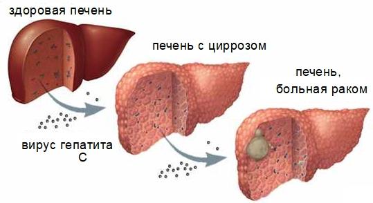 Гепатоцеллюлярная карцинома