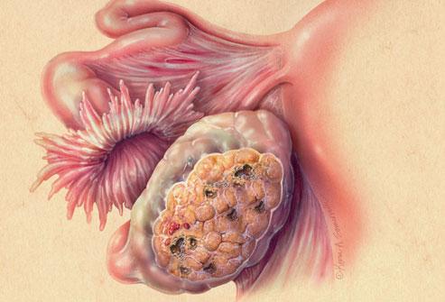 Рак в яичнике