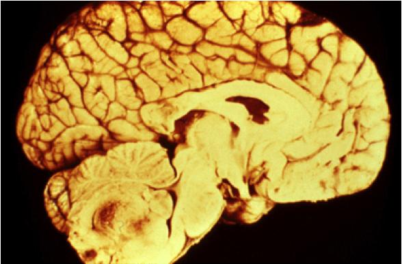 Опухоль эпендимома