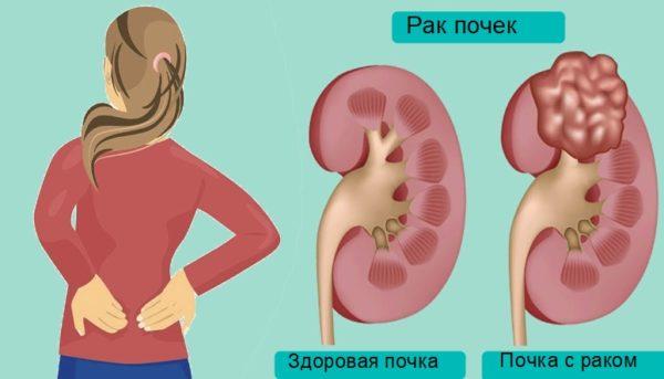 Боль в спине при раке почки