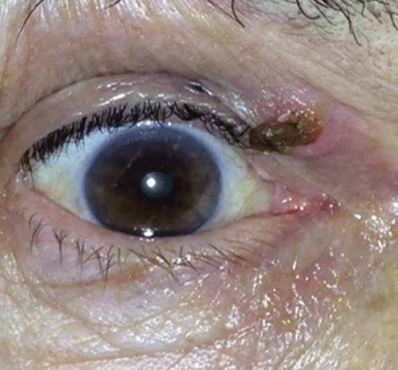 Кератома кожи возле глаза