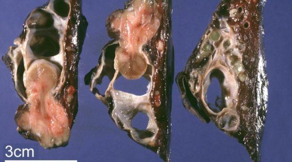 Разновидности карциноидов в лёгких