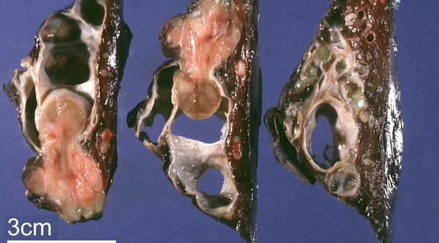 Канцероматоз брюшины - причины, симптомы, диагностика и лечение