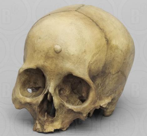 Остеома кости