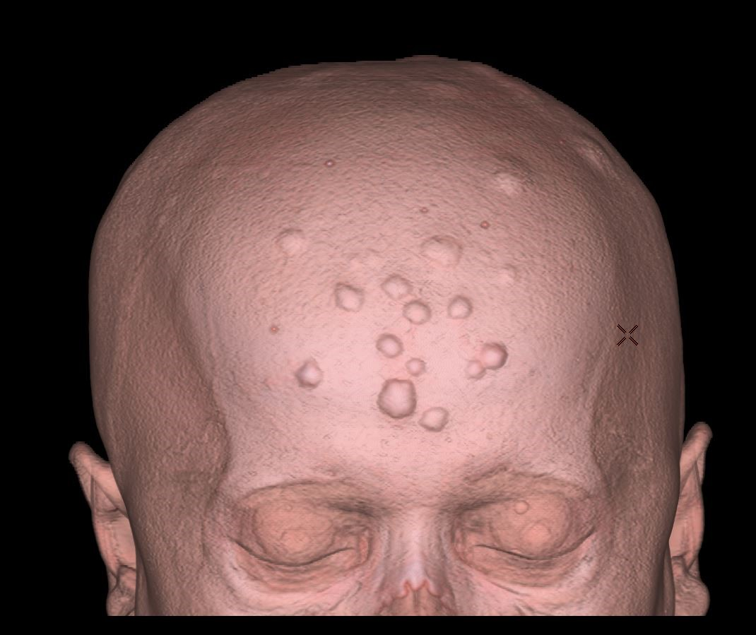 Остеома на затылке головы