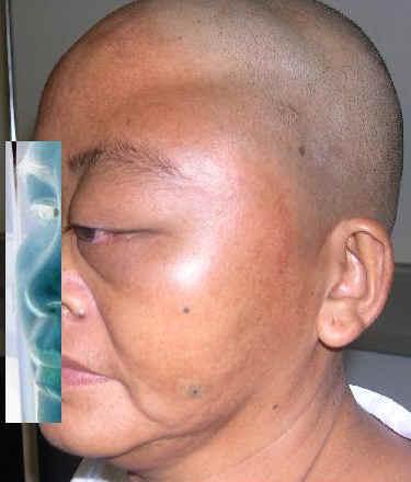 Остеома кости в области глаза