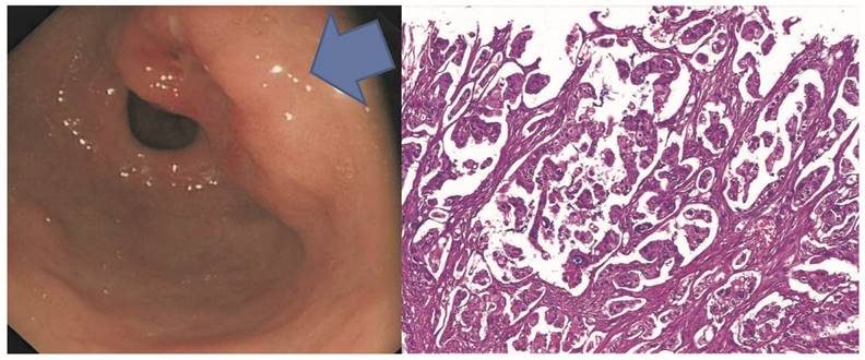 Малодифференцированная аденокарцинома желудка