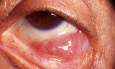 Лимфосаркома глаза