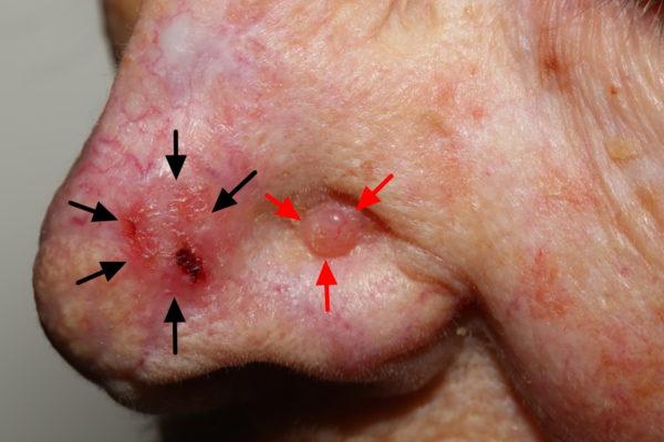 Две базалиомы на носу
