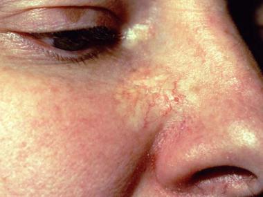 Склеродермальная базалиома на носу