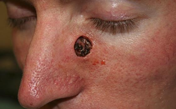 Четвёртая стадия базалиомы на носу