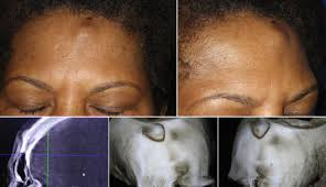 Остеома черепа