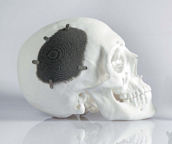 Титановая пластина в черепе