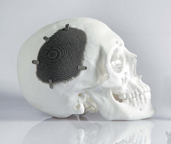 Остеома лобной кости