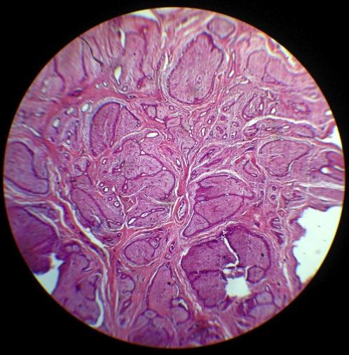 Интраканаликулярная фиброаденома на гистологическом исследовании