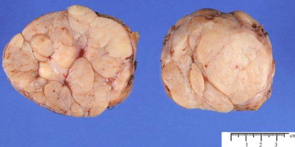 Удалённая фиброаденома молочной железы
