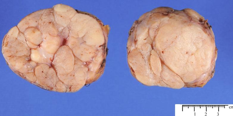 Беременность после удаления фиброаденомы молочной железы