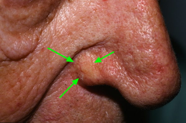 Базалиома на носу может выглядеть безобидно