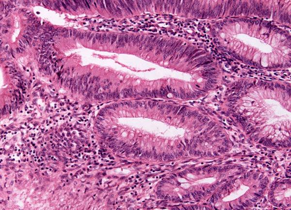 Гистология раковой опухоли кишечника