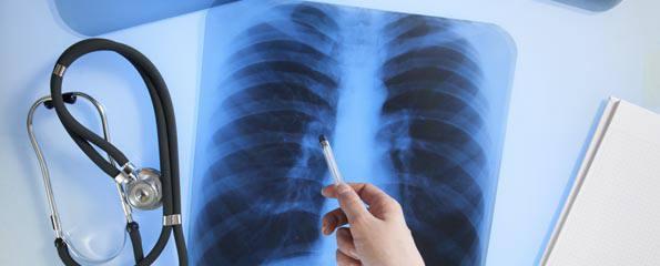 Аденокарцинома лёгкого