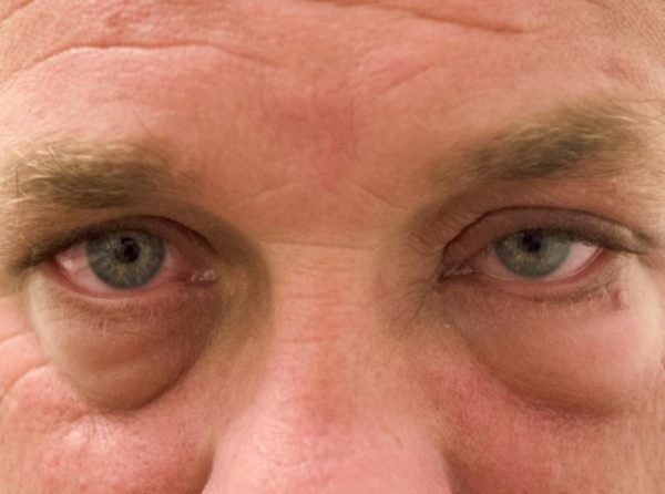 Отёки возле глаз у человека