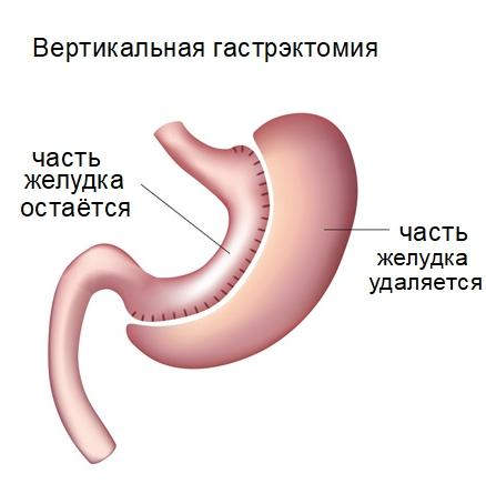 Гастрэктомия желудка