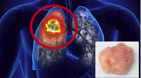 Аденокарцинома лёгких опасна