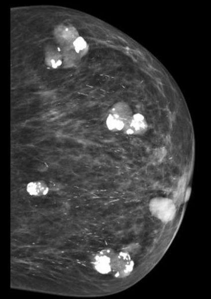 Фиброаденоматоз на маммографии