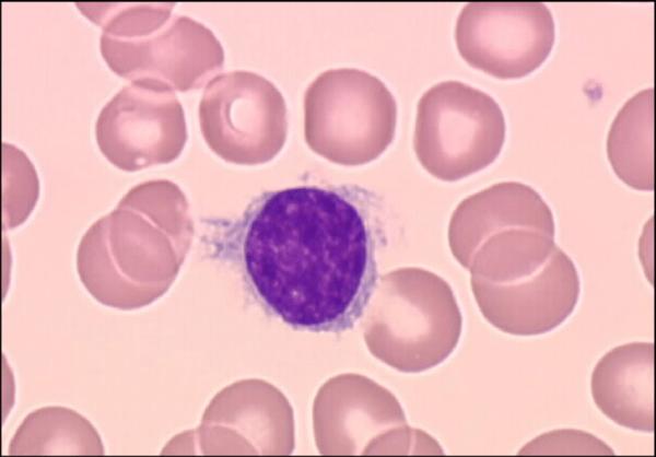 Волосатоклеточный лейкоз под микроскопом